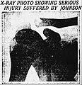 Moose Johnson's torn shoulder.jpg