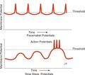 Myogenic potentials.png