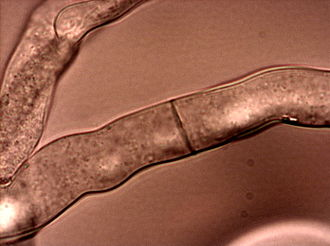 Neurospora crassa - Image: Neurospora crassahyphae