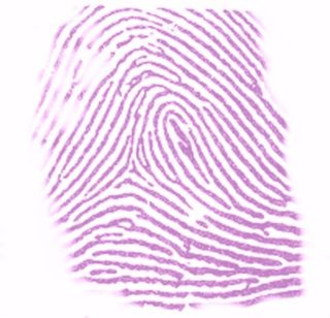 Ninhydrin - A stain obtained after a thumbprint is treated with ninhydrin.