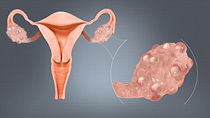 Polycystic Ovaries.jpg