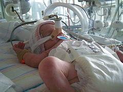 imagen recien nacido cuidado intensivos: