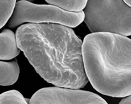 "Electron micrograph of a Plasmodium falciparum-infected red blood cell (center), illustrating adhesion protein ""knobs"" Red blood cells infected with malaria.jpg"