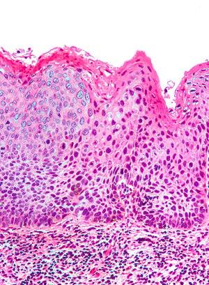 Intraépithéliale vulvaire neoplasia3 1.jpg
