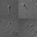 Сперматозоиды 4.jpg