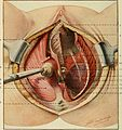 A text-book of gynaecological surgery (1911) (14578535190).jpg
