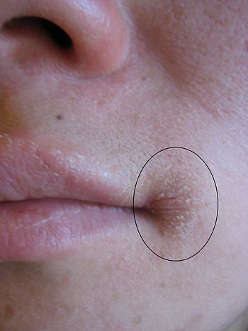 English: Angular cheilitis as marked by the oval