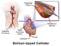 Balloon-Tipped Catheter.png