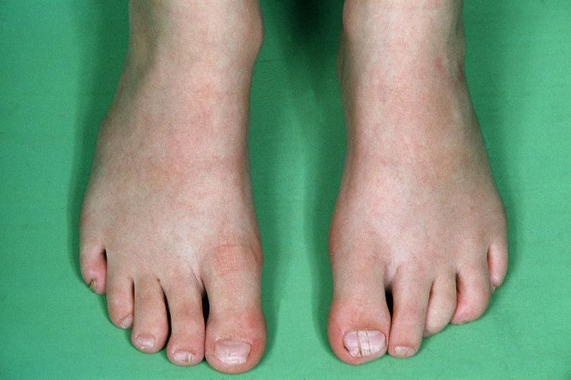 File:CFND toenail.jpg