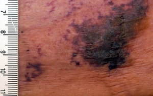 Pathology Outlines Calciphylaxis