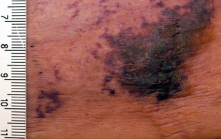 Calciphylaxis Human disease