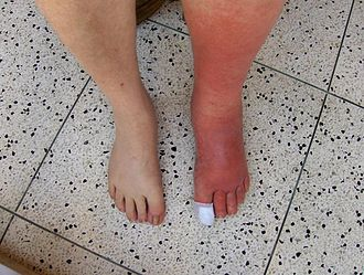Skin infection - Image: Cellulitis Left Leg