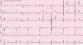Combined hyperkalemia and hypocalcemia.png