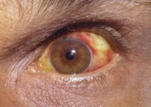 Human eye showing symptomatic red and yellow patches on the white of the eye