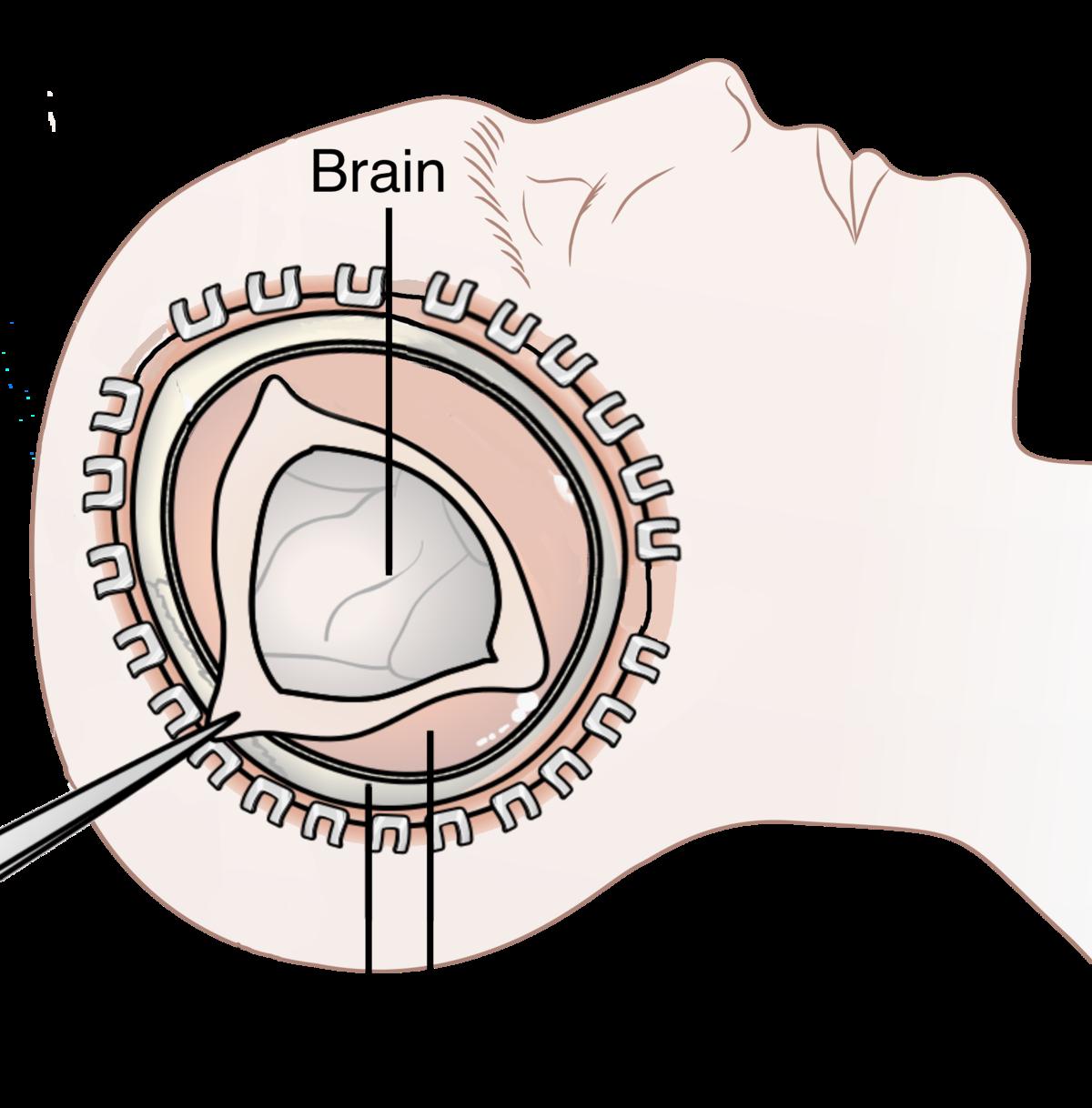 Decompressive craniectomy - Wikipedia