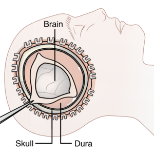 Decompressive craniectomy - Image: Decompressive Craniectomy