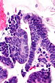 Endocervical adenocarcinoma in situ 2a -- very high mag.jpg