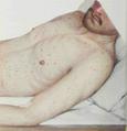 Epidemic Typhus. Macular rash.png