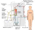 Hemodialysis-cs.PNG