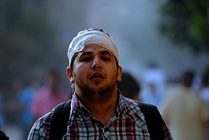 Injured Protester near Tahrir Square