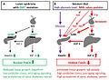 Laron syndrome 01.jpg