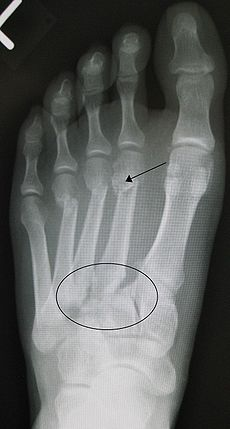 Lisfranc fracture - Wikipedia, the free encyclopedia