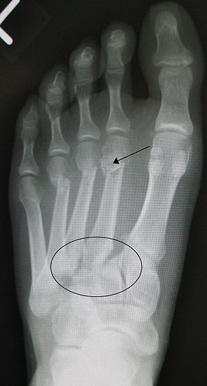 English: Traumatic Lisfranc fracture with frac