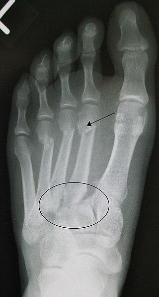 Lisfranc fracture.jpg