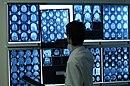 Radiológiai felvételek kiértékelése
