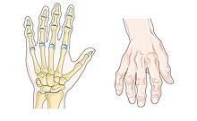 klbova artroza