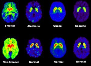 Brain positron emission tomography - PET brain scans show chemical differences in the brain between addicts and non-addicts. The normal images in the bottom row come from non-addicts; the abnormal images in the top row come from patients with addiction disorders. These PET brain scans show that addicts have fewer than average dopamine receptors in their brains, so that weaker dopamine signals are sent between cells.