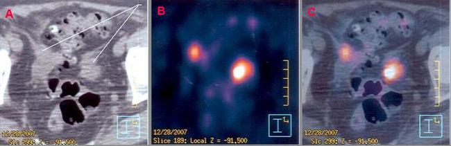 Immagine TAC, PET e sovrapposizione PET-TAC in un cancro del colon-retto, si notano intense aree di captazione a livello del colon sigma (area captante a destra) e a livello dei linfonodi (area captante in alto a sinistra)