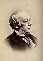 Sir John Eric Erichsen. Photograph by G. Jerrard, 1881. Wellcome V0026333.jpg