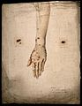 Syphilis; sores and pustules on woman's arm, 1858 Wellcome V0009987.jpg