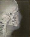 Tricot 2013 - Head (X-ray).jpg