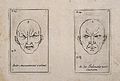 Two outlines of faces, one showing violent movement (left), Wellcome V0009392.jpg