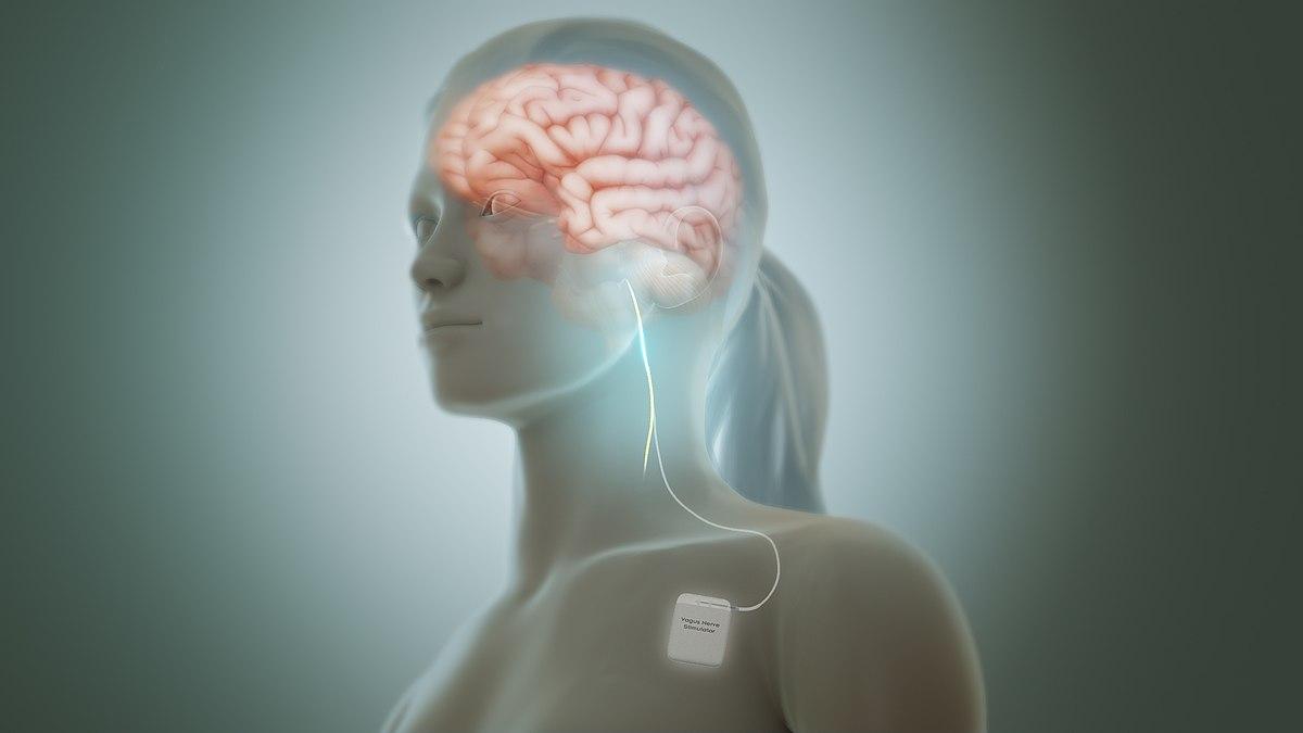 Vagus nerve stimulation - Wikipedia