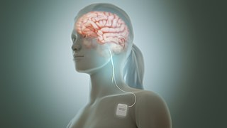Vagus nerve stimulation Medical treatment that involves delivering electrical impulses to the vagus nerve.
