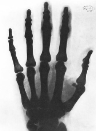Nikola Tesla - X-ray of a hand, taken by Tesla