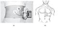 A) Rozložení elektrod při perkutánním EGG a b) diagram rozložení elektrod pro jedno svodové EGG.png
