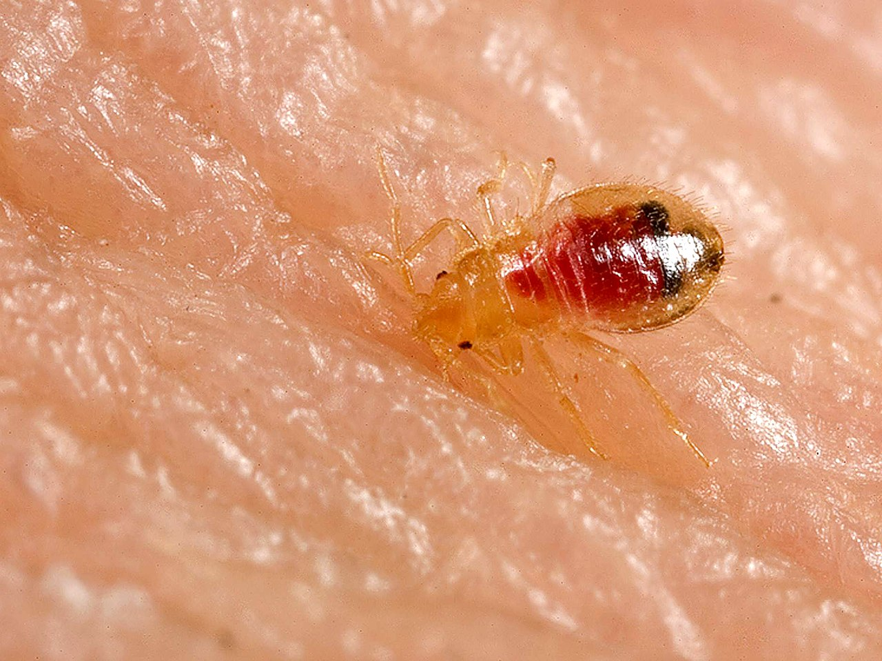 Bed Bugs And Tenants Rights