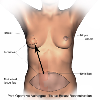 Breast reconstruction - Post-operative state after Transverse Rectus Abdominis Myocutaneous flap(TRAM).