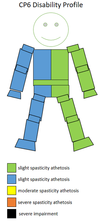 T36 (classification) - The spasticity athetosis level and location of a CP6 sportsperson.