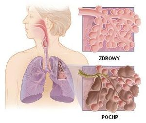 Healthy lung vs COPD.