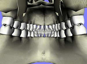 Posterior view of teeth taken from inside of m...
