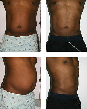 Suction-assisted lipectomy and ultrasonic-assi...