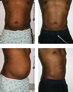 fettsugning mage före efter
