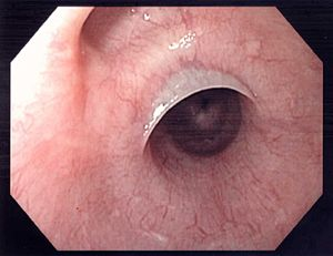 benign neoplasm of the proximal third of esophagus icd 10