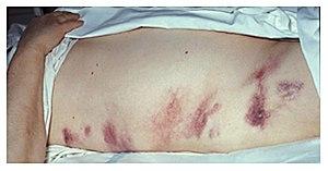 Hemorrhagic pancreatitis - Grey Turner's sign.jpg