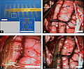 Implantation of recording ECoG probe into STS and ITG of Macaque.jpg